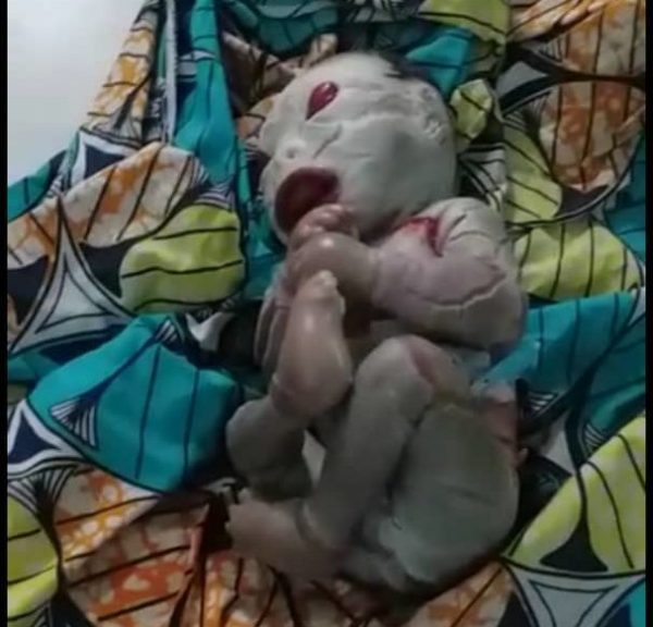 Baby Born With Rare Condition in Maiduguri, Borno State, North Eastern Nigeria